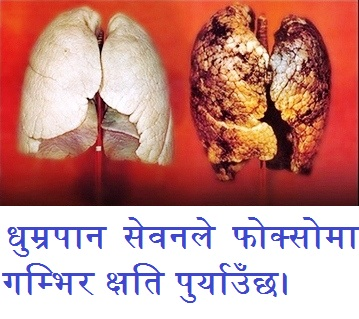 धूम्रपान सेवनले मस्तिष्क र स्वस्थ्यमा गम्भिर क्षति